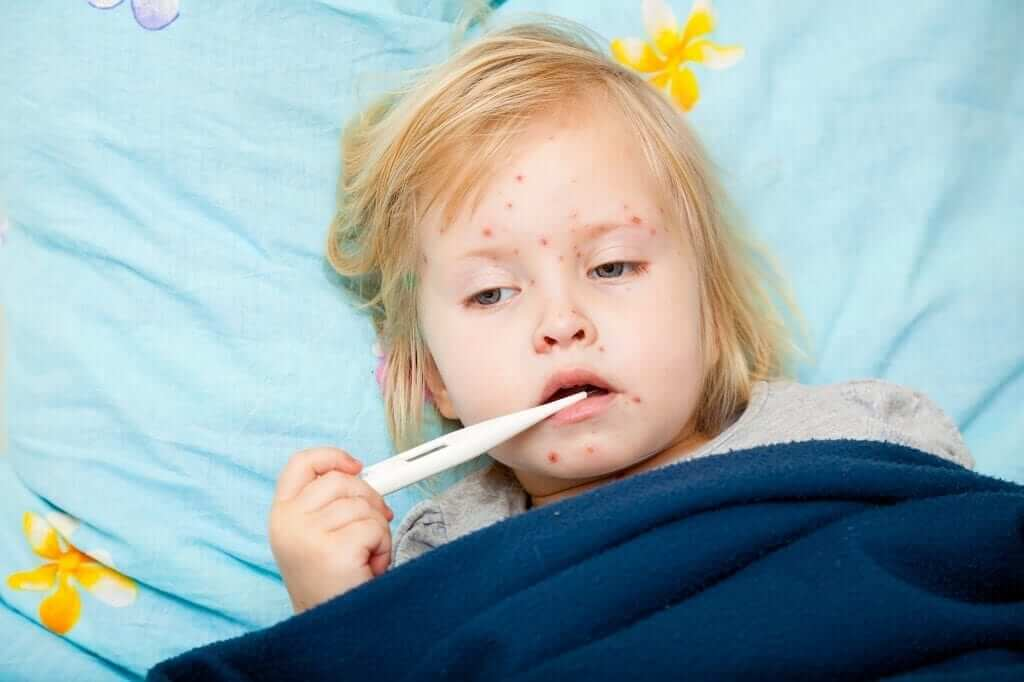 Що ви не знаєте про кір Міська дитяча лікарня №5 детская больница Запорожье